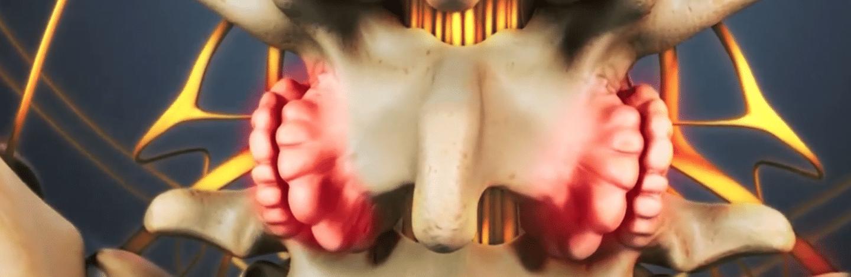 Proliferación ósea excesiva en las articulaciones