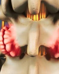 Los osteofitos, qué son y por qué se producen